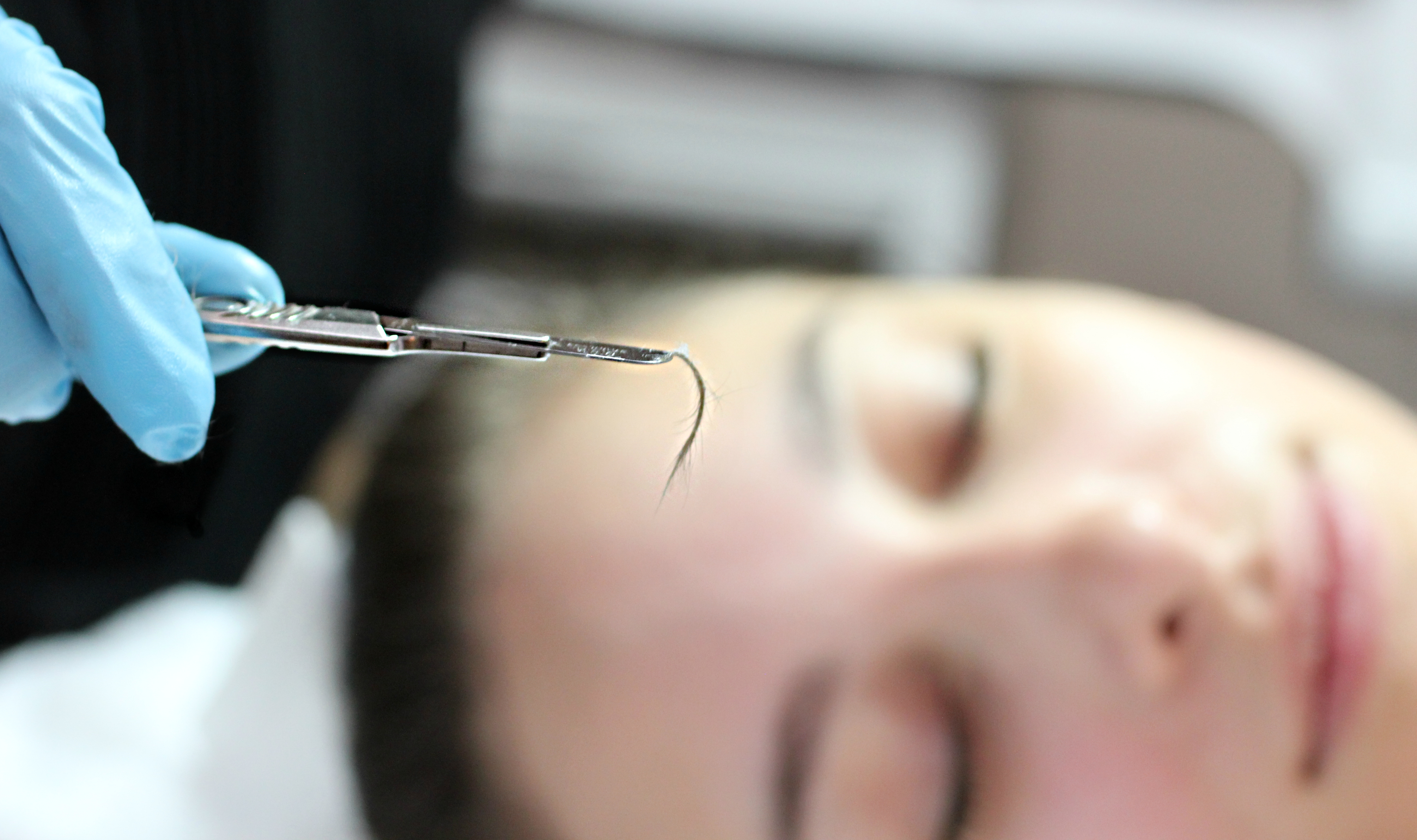 Dermaplaning Hair Removal
